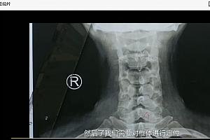 三个好医生李正军全脊柱正骨教学高清视频教程百度云网盘下载学习