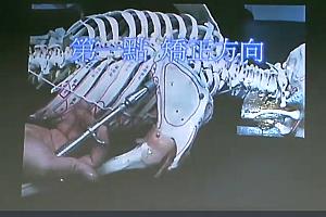 谢庆良A.H.T.整体脊椎矫正术美式整脊视频教程百度网盘下载学习