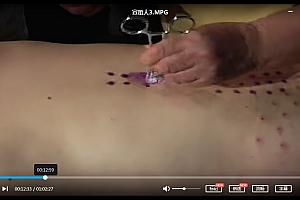 宣蛰人银质针针刺疗法讲习班软组织压痛点推拿讲习班视频教程合集百度云网盘下载学习