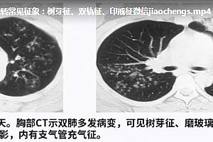 丁香园临床公开课诊断必备肺部CT的诊断技巧及误区主讲张嵩高清视频课程28集百度云网盘下载学习