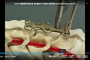 骨外科视频教程合集坎贝尔骨科中英文视频合集手足外科肱骨肩和锁骨骨折手术骨科卫生部医学视听教材百度云网盘