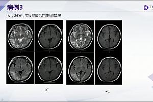 丁香园手把手教你系统解读颅脑MRI广州三九脑科医院汪文胜10节高清视频课程百度云网盘下载学习