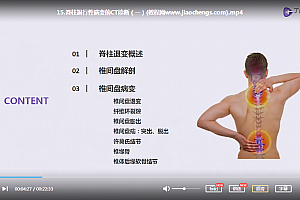 北京积水潭医院放射科闫东手把手教你读懂脊柱CT视频课程26集百度云网盘下载学习